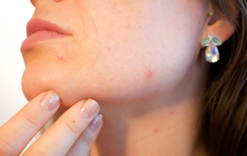 10 Natural Treatments to Remove Acne Scars and Prevent Future Acne Breakouts