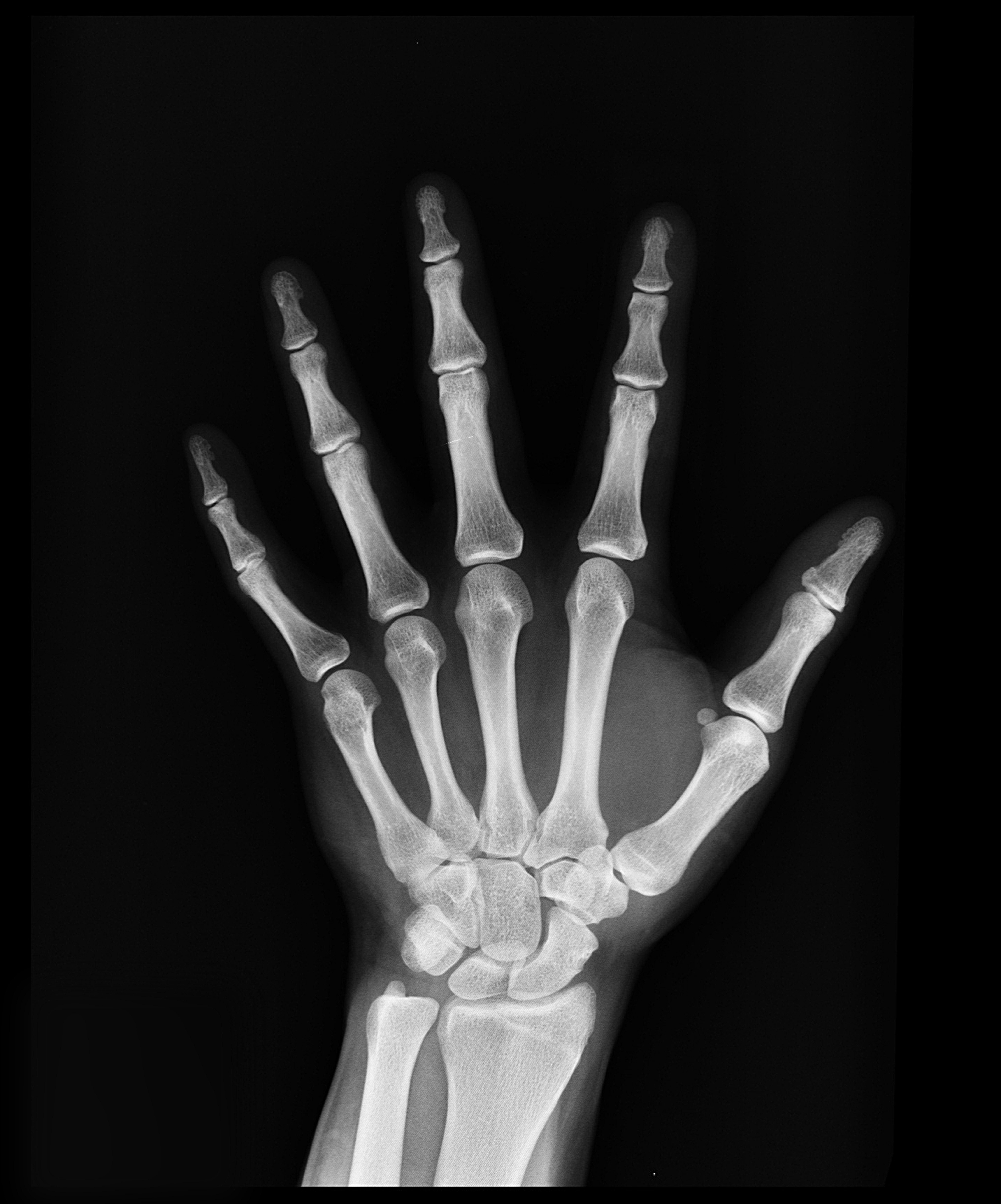 black and white bones hand 207496